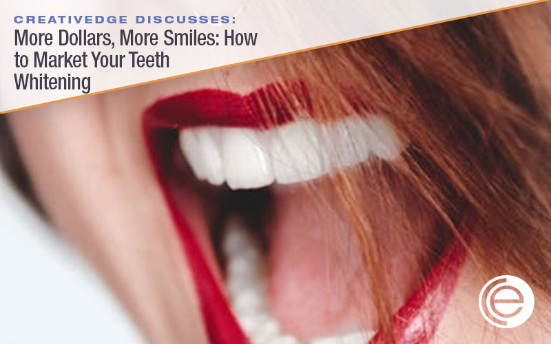 More Dollars, More Smiles: How to Market Your Teeth Whitening